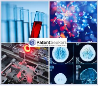 Patent Monitoring Services